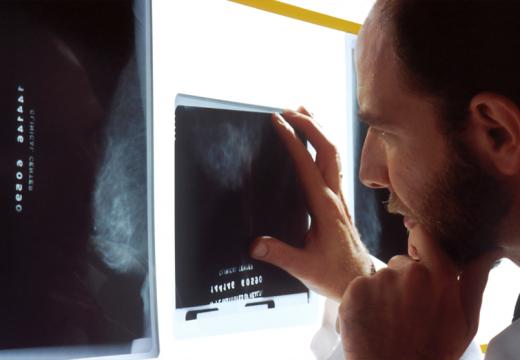 Lutte contre le cancer : les différents traitements pour vaincre cette maladie