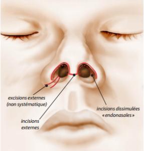 rhinoplastie chirurgien esthétique lyon