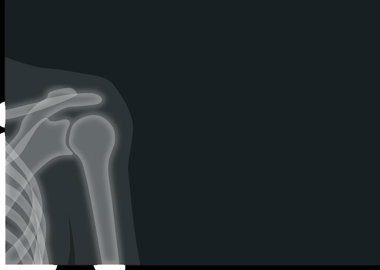 radio du squelette montrant une épaule