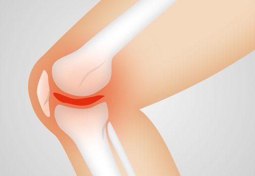 Qu'est-ce que l'arthrose au genou ?